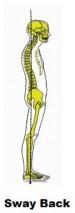 spine-alignments-e1447574413912-300x217 (3)